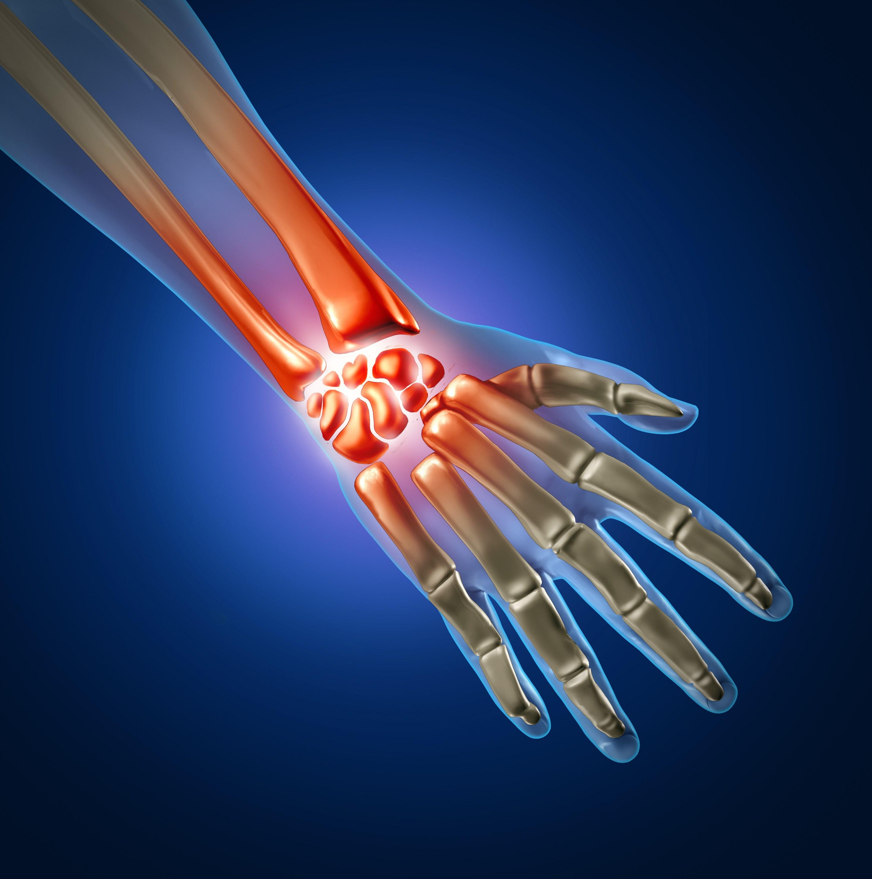 Травмирование кистей рук